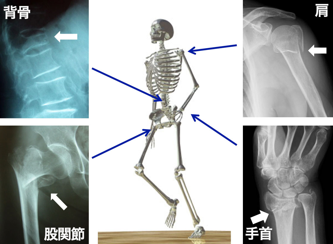 特に注意が必要な背骨、股関節、手首、肩