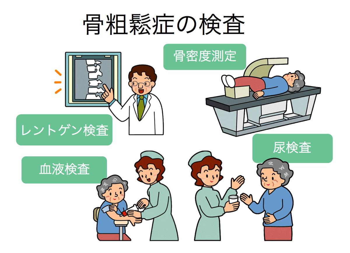 骨粗鬆症の検査